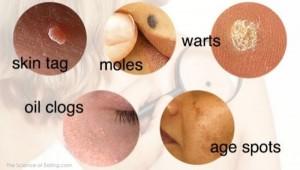 warts on aging skin)