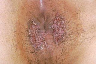hpv warts come back use of human papillomavirus vaccine