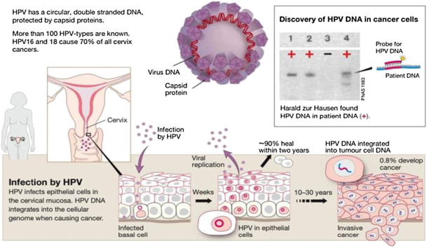 Hpv high risk amplified probe positive - Hpv high risk amplified probe