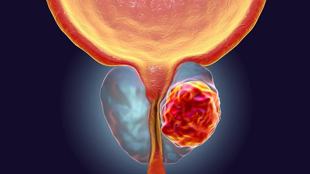 Cancer de prostata sintomas y signos iniciales Cancer de prostata sintomas iniciales