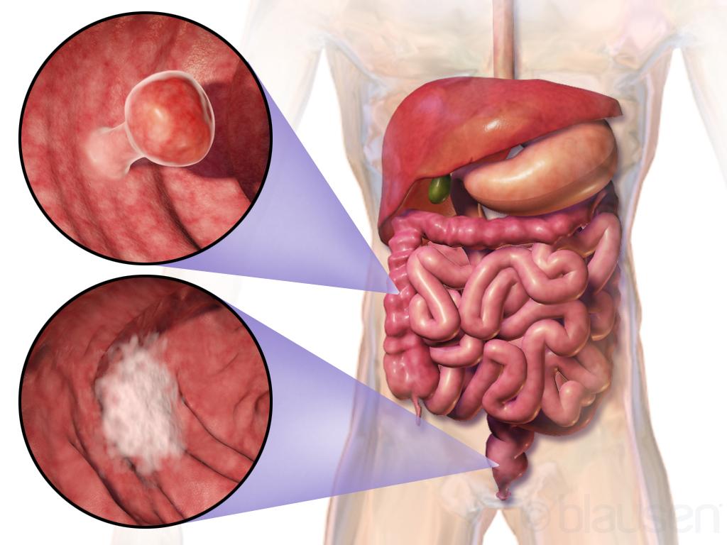 cancer colon benign)