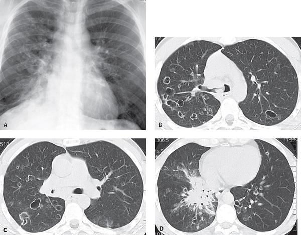 papillomatosis chest x ray