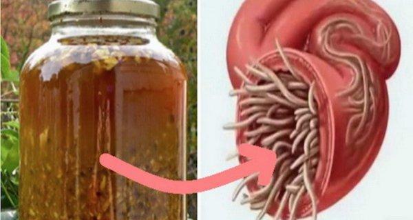 ce paraziți pot fi în corpul uman cum să eliminați forul de verucă plantară