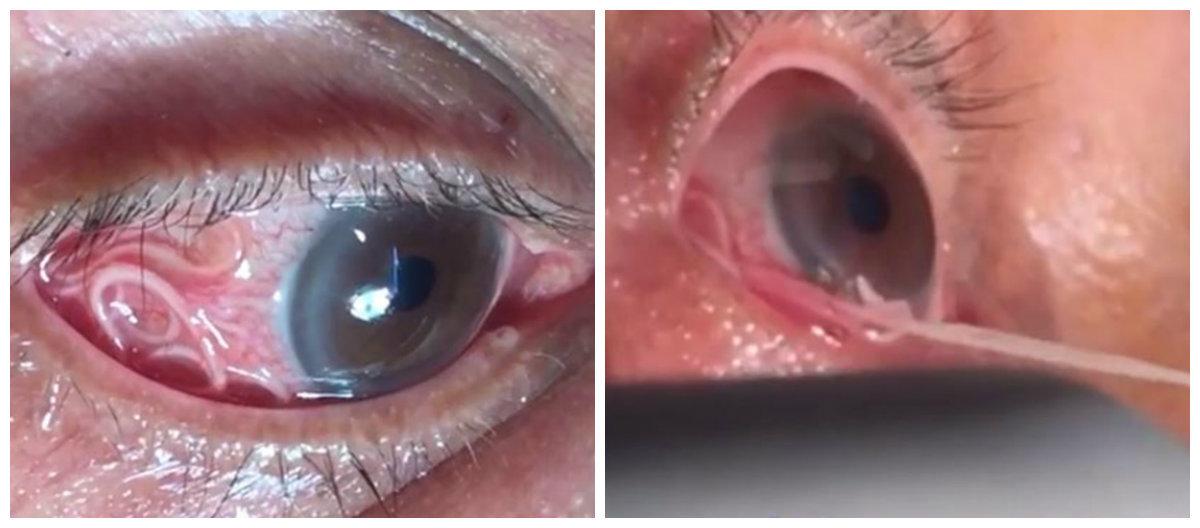 O tânără a crezut că are o geană în ochi. Când a verificat, avea 14 viermi