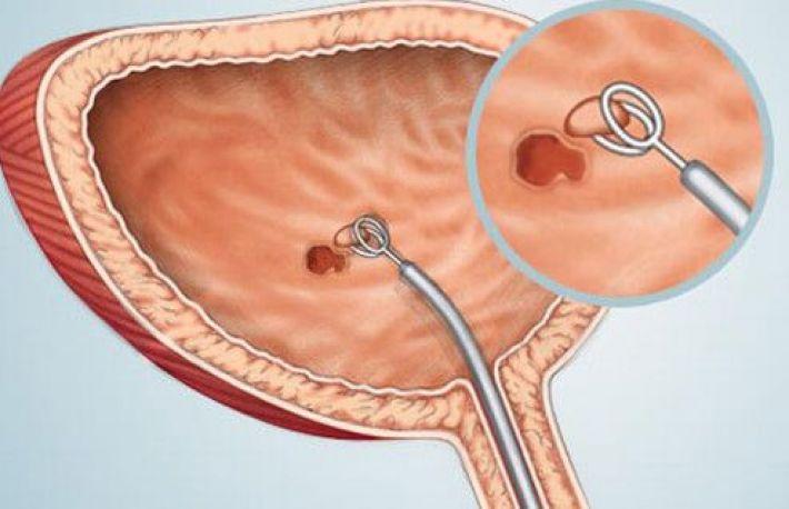 cancerul vezicii urinare simptome)