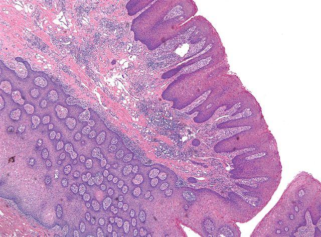 Papilloma lateral tongue