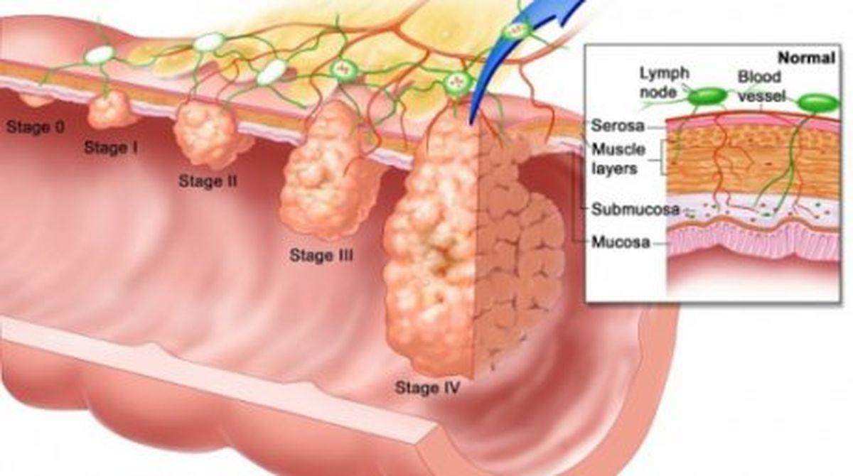 simptome in cancerul de colon