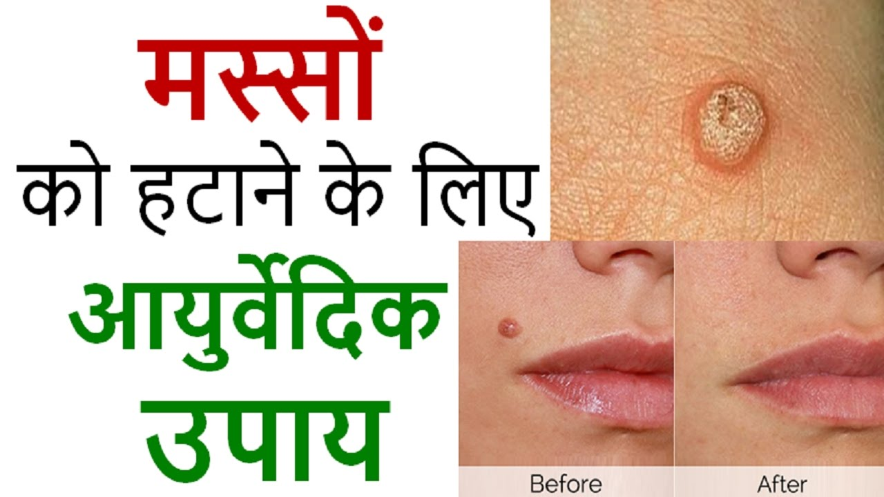 Wart treatment ayurvedic medicine - triplus.ro
