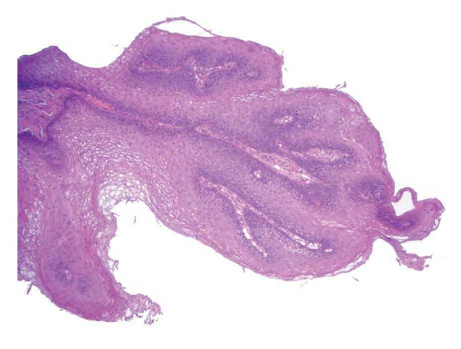 papiloma lingual histologia)