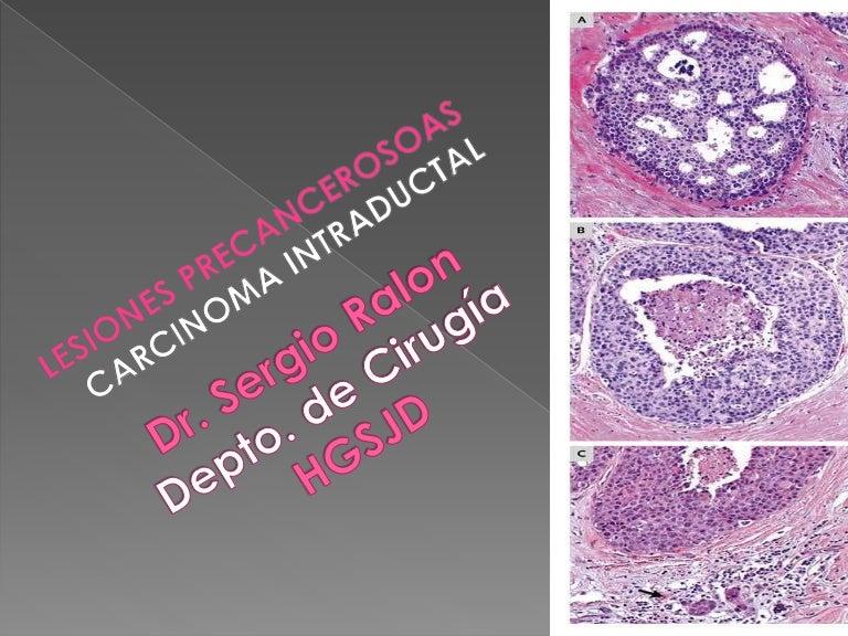 papiloma intraductal com metaplasia apocrina)