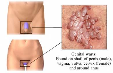 condiloame pe organele genitale feminine