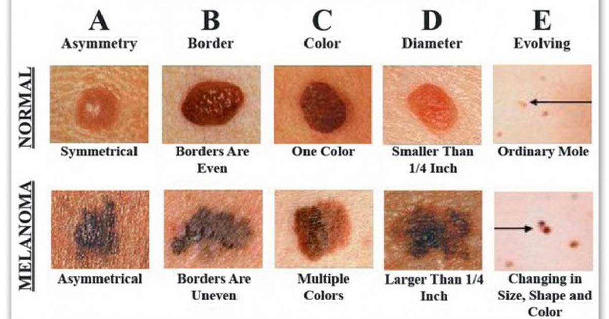 Simptome care pot indica prezența cancerului - Intermedicas | Blog
