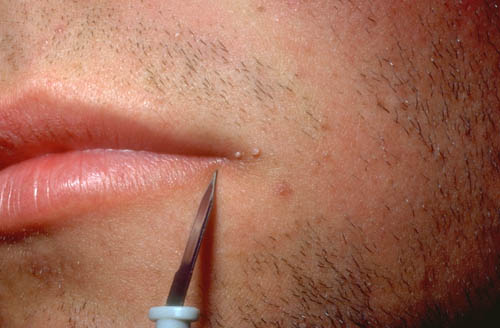 hpv virus lip