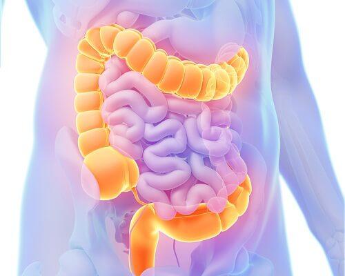 cancer colon femei