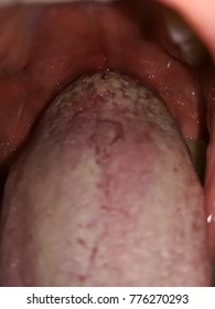 warts on your tongue