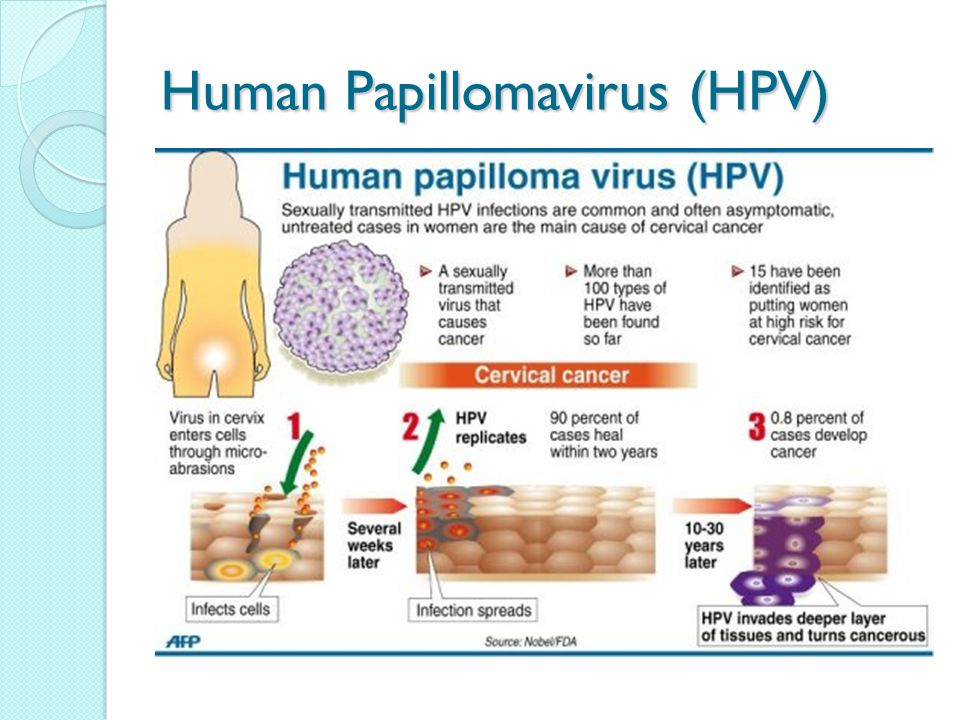 can papilloma lead to cancer)
