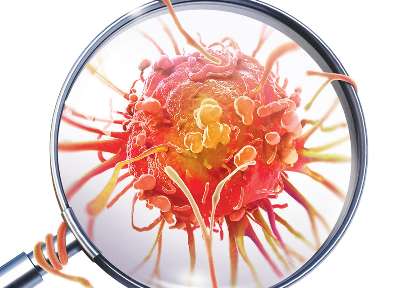 cancer ulcera de colon
