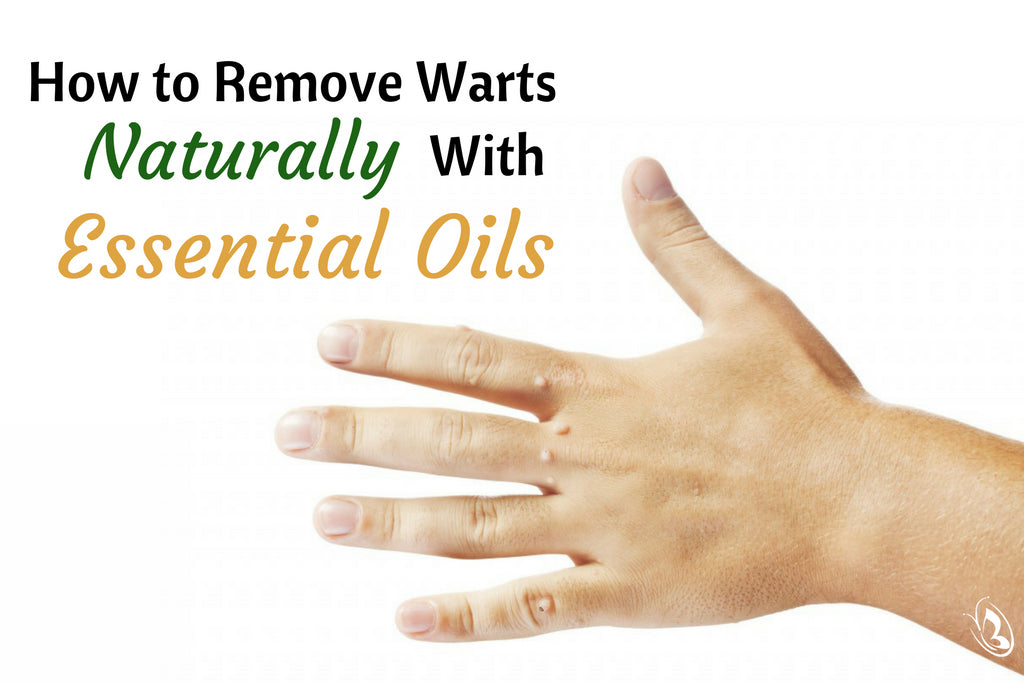 wart on foot natural remedy