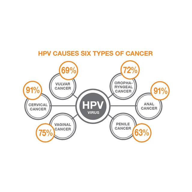 does human papillomavirus cause cancer