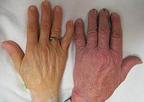 wart treatment liquid cum se manifestă viermii la oameni