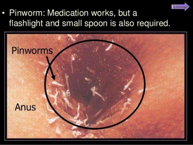 ce sunt oxiurile alimente care detox colon