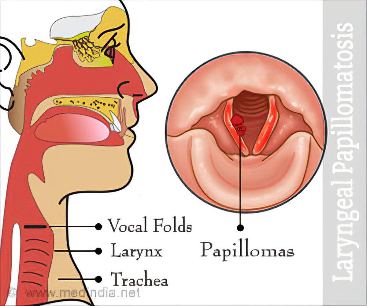 Laryngeal papilloma virus, Laryngeal papillomas virus
