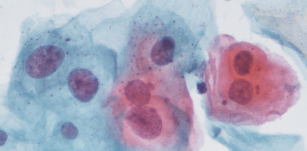 papillomavirus frottis tous les 6 mois)