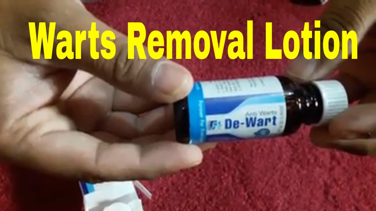 wart treatment lotion