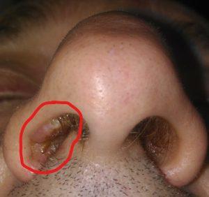 squamous papilloma of nasal vestibule)
