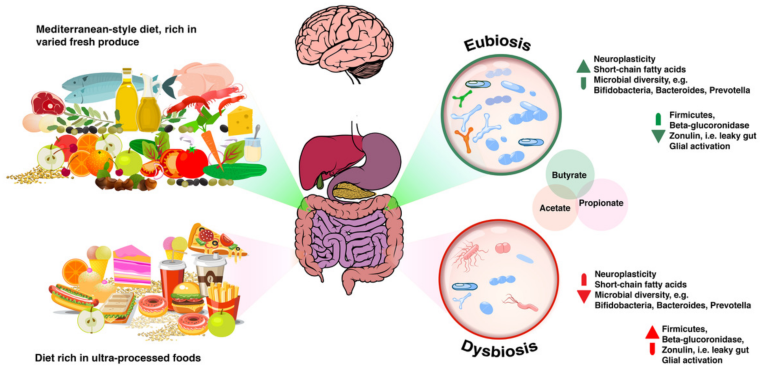 Dysbiosis what to eat
