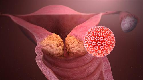Bouton papillomavirus femme