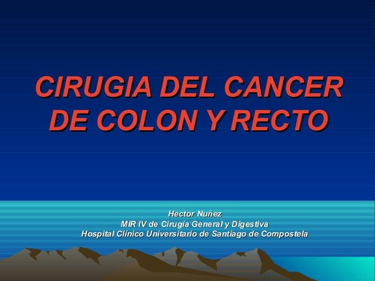 cancer colon laparoscopia)
