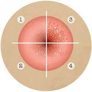 Papillomavirus risques pour l homme, Infection papillomavirus homme symptomes