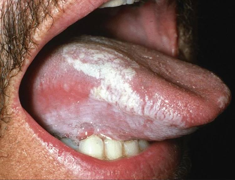 Vaccino papilloma virus da quando esiste. Tetanos psoriazis vaccinare