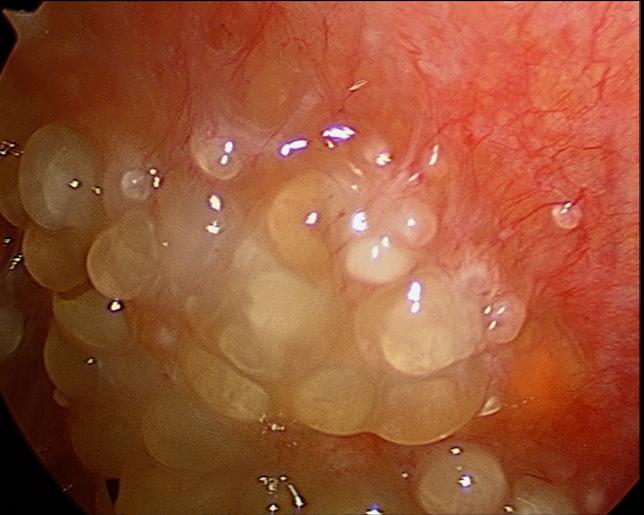 Cancer in peritoneu. Chimioterapia hipertermică (HIPEC)