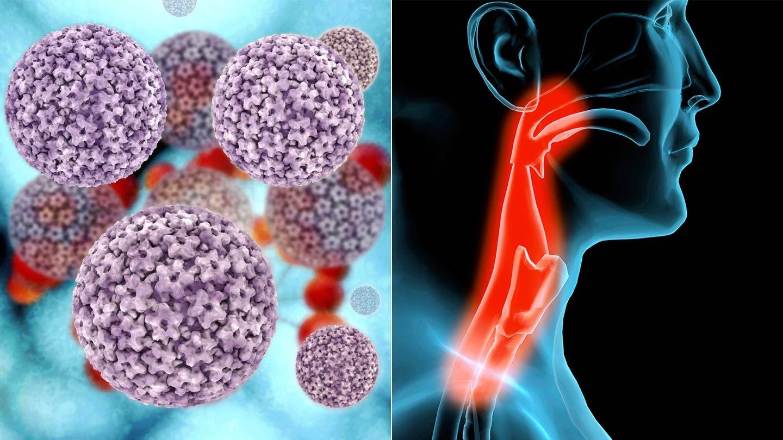 high risk hpv throat cancer)