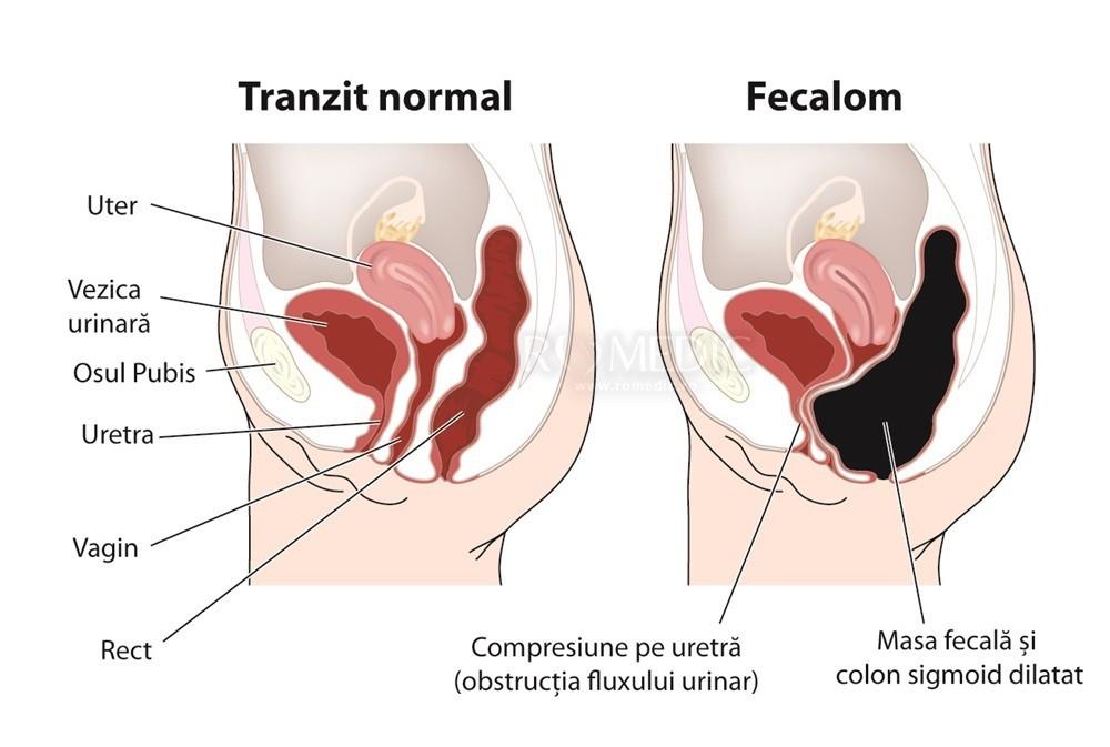 cancer sigmoidian simptome Tratament cu unguent HPF