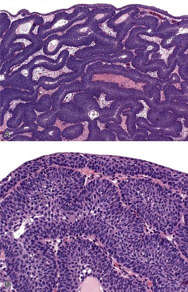Inverted papilloma bladder ck20 Bacterie vibrio