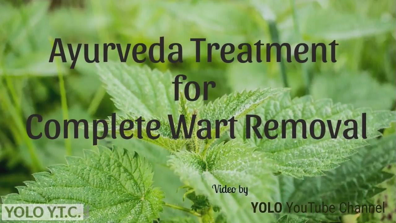 wart treatment in ayurveda)