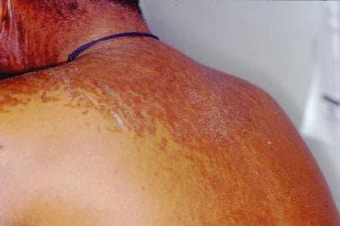 papillomatosis and skin