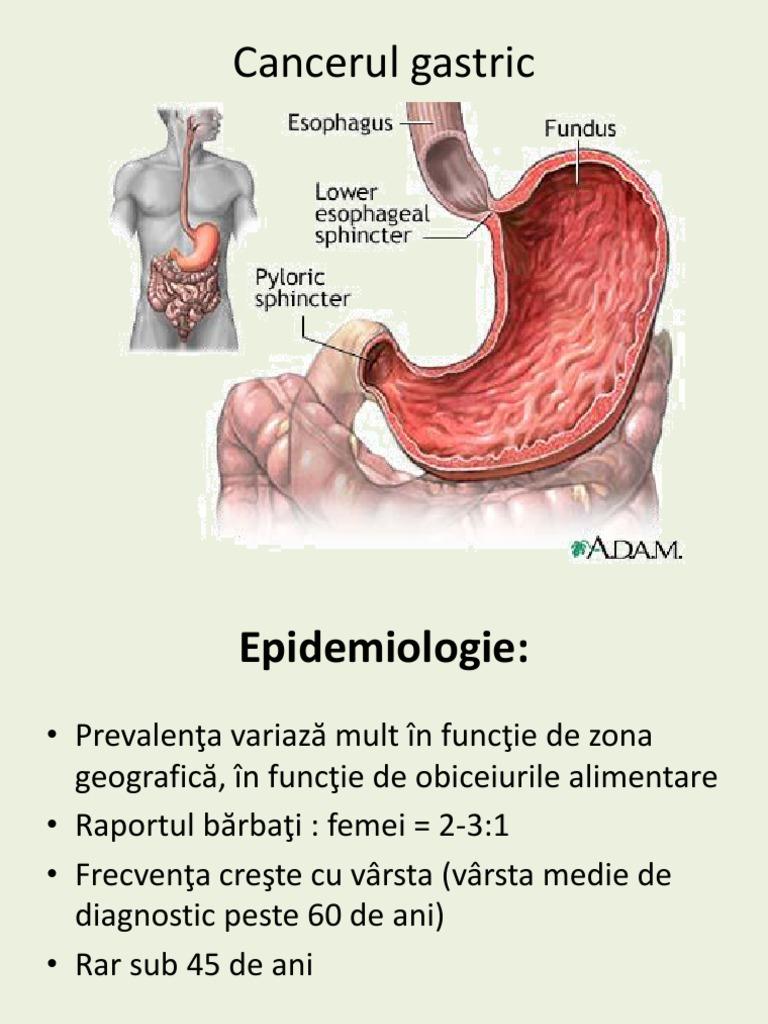 cancerul gastric cauze)