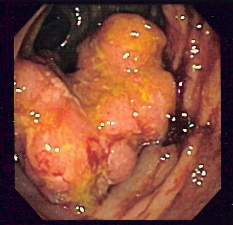 cancer la colon malign
