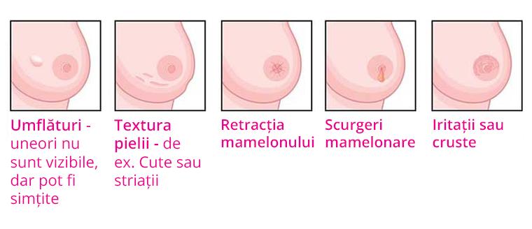 cancerul mamar)