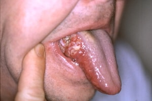 cancer al gurii