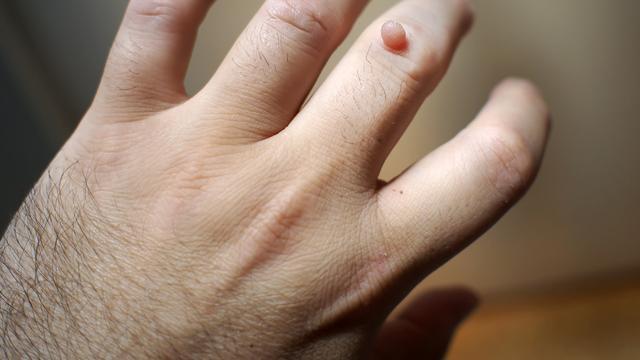 cum să eliminați papiloamele pe un deget