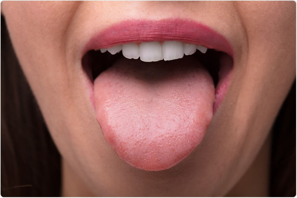 Aggressive cancer of the tongue, Aggressive cancer of the tongue