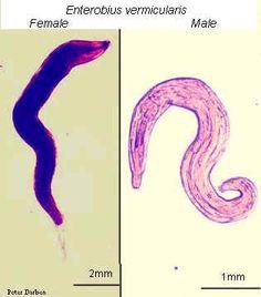 Enterobius vermicularis signs and symptoms zdravljenje s triad evalar paraziti