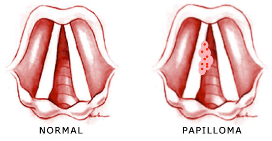 hpv in throat cancer symptoms)