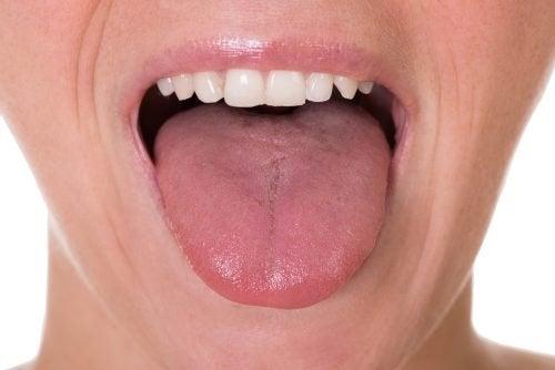 papilloma virus tumore lingua)