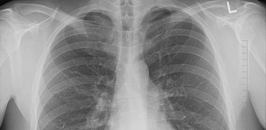 cancer la plamani cauze